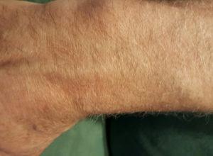De huid is minder droog en ik heb niet meer van die schrale plekken.